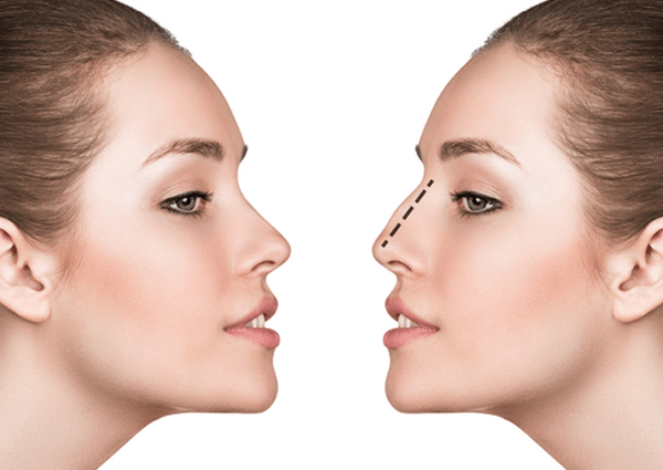6 Common Nose Shape Concerns that Rhinoplasty can resolve:
